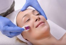 Mezoterapia igłowa – lifting bez skalpela?